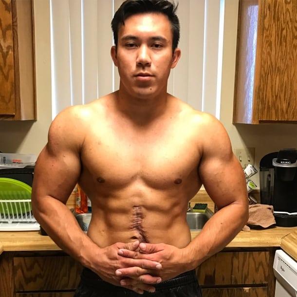 Cyberflexing.com Exclusive Interview With Surgical Error Survivor And Aspiring Bodybuilder Nathaniel Hampton